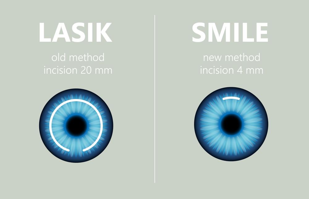 LASIK VS Smile Eye Surgery